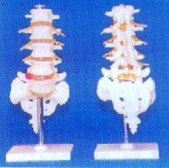 人體解剖模型|大型腰椎帶骶骨尾骨椎間盤突出的教學模型 GD-0145A