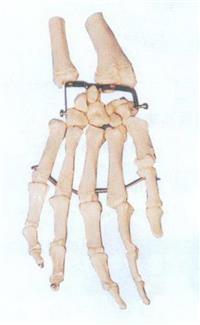 GD/A11126手掌骨模型 GD/A11126