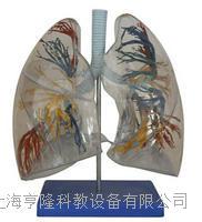 透明肺段 KAH/A330
