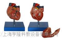 新型自然大心臟解剖模型 KAH/A307B