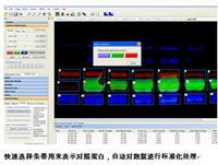 多色熒光凝膠成像分析係統