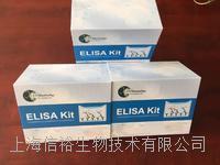 人白介素1受體II(IL-1R2)白介素試劑盒 IL-1R2