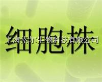 NCI-H526细胞人肺癌细胞NCI-H526