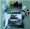 人抗核膜糖蛋白210抗体(gp210)ELISA检测试剂盒说明书