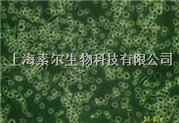 HEC-1-B细胞,人子宫内膜癌细胞